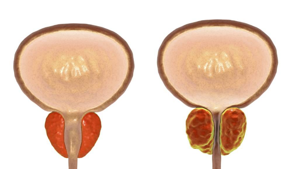 příznaky zvětšené prostaty